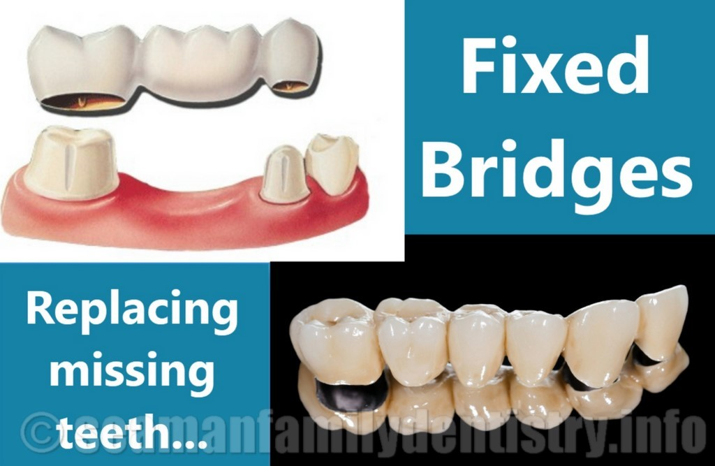 Illustration of Fixed Dental Bridge