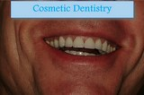 Picture of cosmetic crowns on all teeth